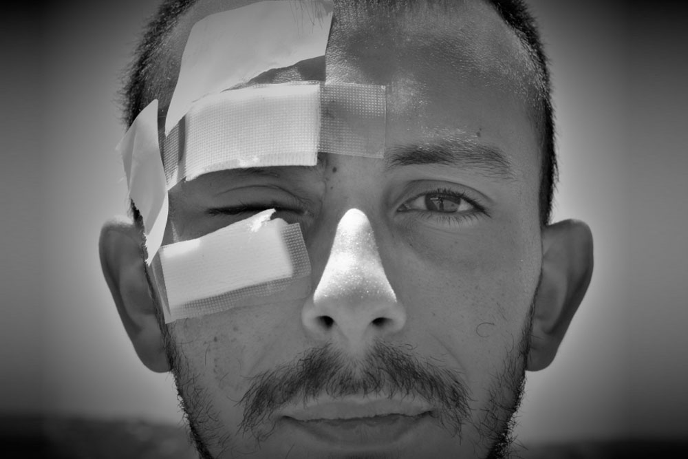 Denuncian que profesor perdió un ojo tras recibir lacrimógena en Valparaíso
